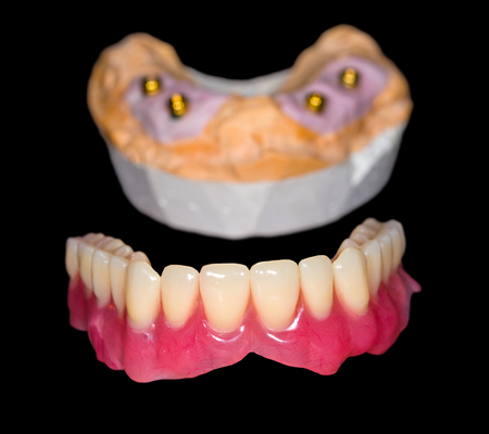 implant: Removable denture and gypsum model on isolated black