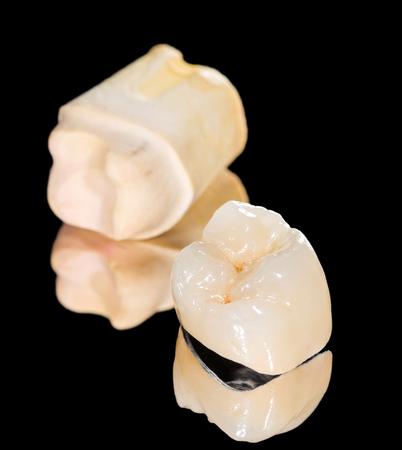 prosthodontics: Corona in metallo ceramica su sfondo nero isolato
