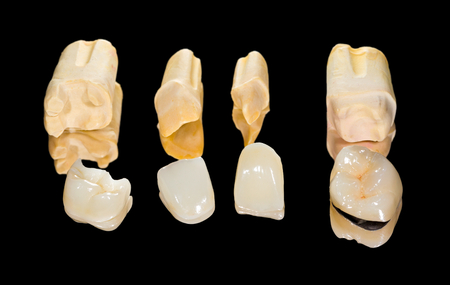 inlay: Dental ceramic crowns on isolated black
