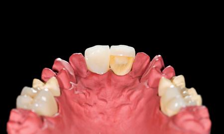 prosthodontics: Corone in ceramica dentali su modello in gesso isolato su sfondo nero