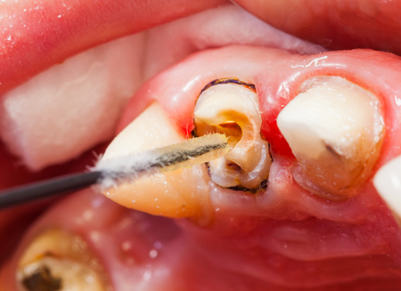 root canal: Close up photo of the teeth rehabilitation