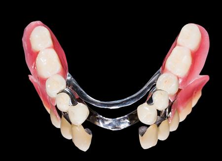 prothèse dentaire: Gros plan de prothèse dentaire squelettique avec des couronnes en porcelaine