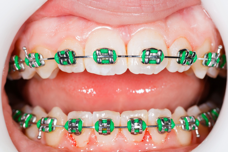fix jaw: Closeup photo of orthodontic braces on teeth