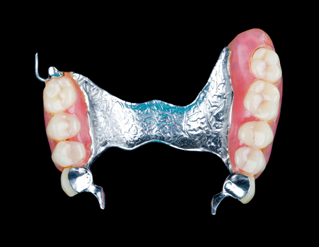 Closeup of dental skeletal prosthesis with porcelain crowns photo