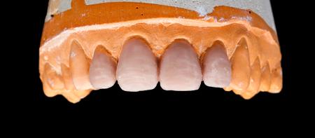 prosthodontics: Upper denture gypsum model on isolated black background