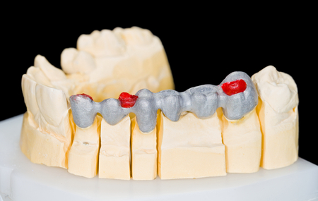 dental resin: Photo of a metal framework bridge on gypsum model
