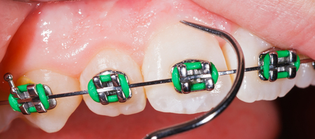 prosthodontics: Close up photo of teeth with orthodontic braces
