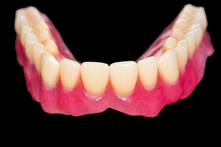 prosthodontics: Protesi inferiore artificiale su sfondo nero isolato