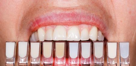 dentier: Détermination de la teinte à l'aide d'un teintier Banque d'images