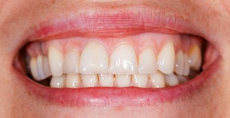 Hermosa sonrisa y dientes de una mujer joven Foto de archivo - 31912327