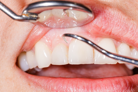 Periodic dental examination to have a healthy mouth and teeth.