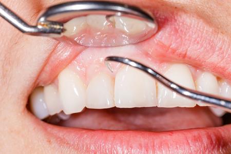 Examen dental periódica para tener una boca y dientes sanos. Foto de archivo - 31912328