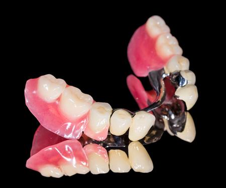 Primer plano de la prótesis esquelética dental con coronas de porcelana Foto de archivo - 32648016