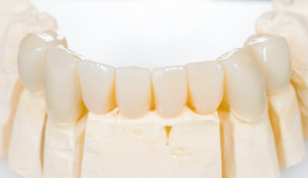 Dental ceramic bridge on isolated white  photo
