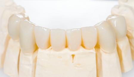 Pont de céramique dentaire sur blanc isolé Banque d'images