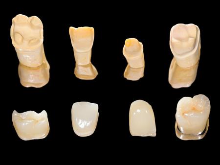 prosthodontics: Corone in ceramica dentali isolati su nero Archivio Fotografico