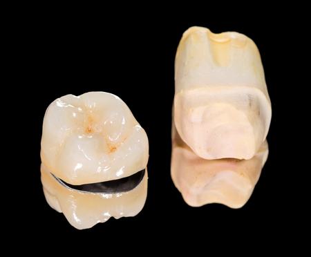 prosthodontics: Metal ceramic crown on isolated black