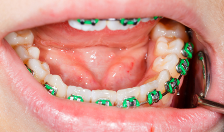 prosthodontics: Primo piano foto di denti con apparecchi ortodontici
