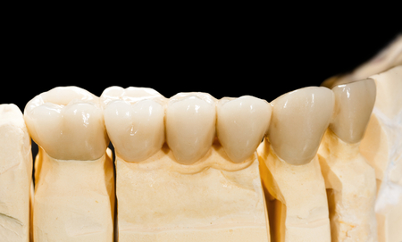 molars: Closeup photo of a dental ceramic bridge Stock Photo
