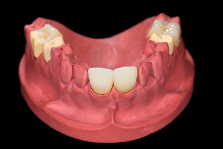 prosthodontics: Corone in ceramica dentale su modello in gesso su sfondo nero isolato