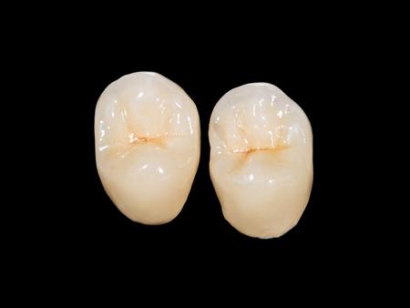 Dentalkeramische Kronen auf schwarzem Hintergrund isoliert Standard-Bild - 34615287