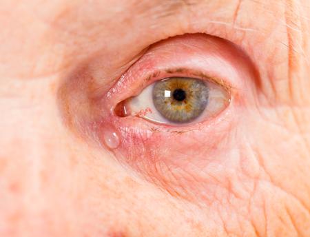 mujer llorando: Cierre de la foto del ojo de la mujer de edad avanzada Foto de archivo
