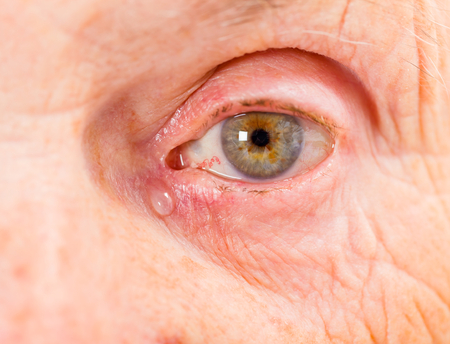 Close up photo of elderly woman eye