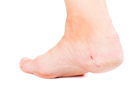 Close up photo of a person with dry skin on heel photo