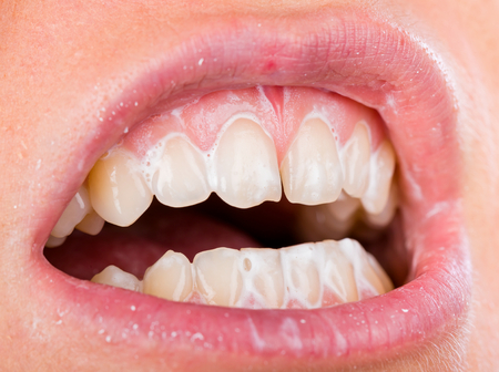 dental prophylaxis: Close up photo of teeth cleaning with toothpaste