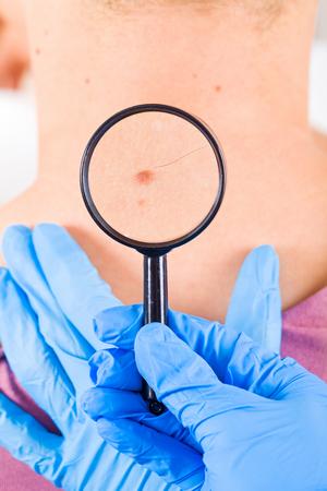Dermatoloog onderzoekt een moedervlek van een mannelijke patiënt Stockfoto