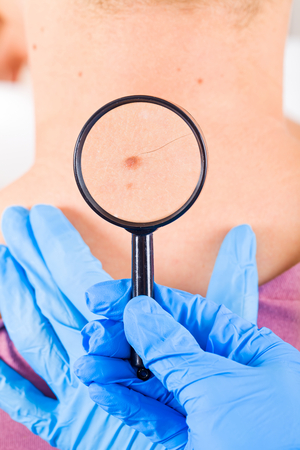 Hautarzt untersucht ein Muttermal eines männlichen Patienten Standard-Bild - 37850888