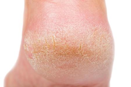 Close-up foto van een persoon met een droge huid op de hiel