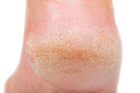 Close up photo of a person with dry skin on heel