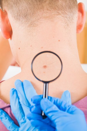 malign: Dermatologist examines a birthmark of a male patient Stock Photo