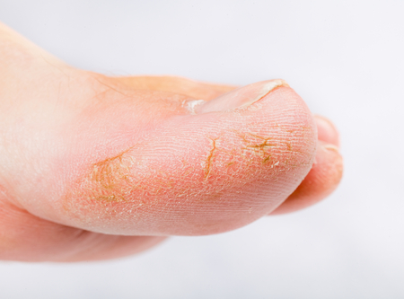 Close up photo of a person with dry skin on big toe