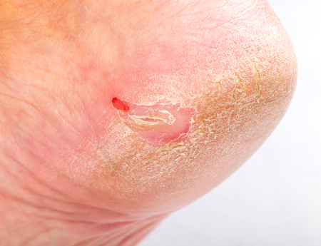 woman foot: Close up photo of a person with dry skin on heel