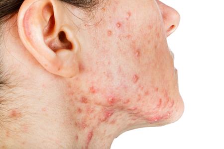 varicela: Retrato de niña con problemas de la piel
