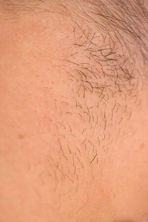 thinning: Close up photo of human hairy skin