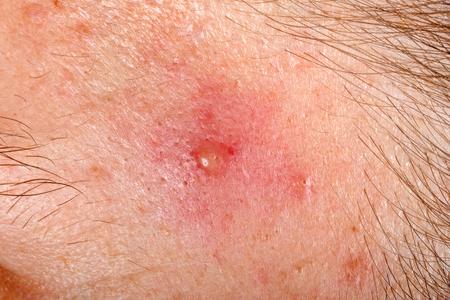 pus: Close up photo of nodular cystic acne skin