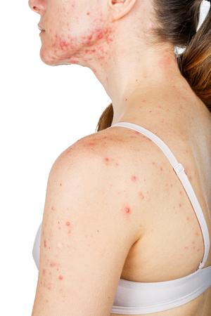 肌の問題を持つ若い女の子の写真
