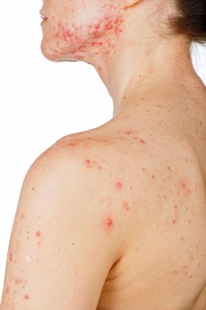 sarpullido: Foto de la joven con problemas de la piel