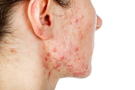 Portret van een jong meisje met een huidprobleem Stockfoto