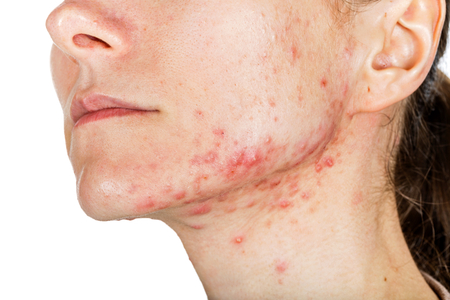 Portrait des jungen Mädchens mit Hautproblem Standard-Bild - 53820619