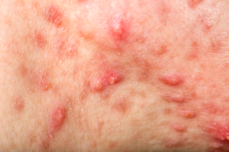 Close up photo of nodular cystic acne skin