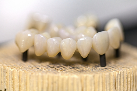 Close up photo of burned out dental ceramic bridge