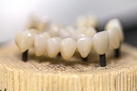 burned out: Close up photo of burned out dental ceramic bridge