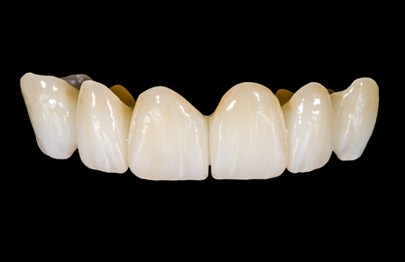 Dental ceramic bridge on isolated black background Standard-Bild