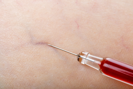 puncture: Close up photo of injection treatment on human skin