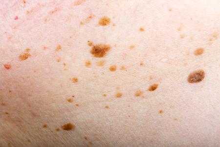 Close up photo of many nevus on human skin