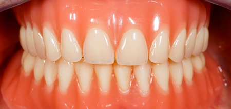 prothesis: Close up photo of acrylic removable dentures